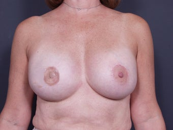 54 Year Old Female Breast Reconstruction after 643121