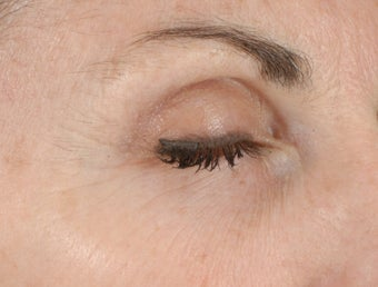 Ulthera Laser Skin Tightening after 346273