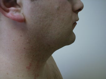 Liposuction of neck/chin area after 590914