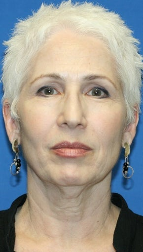 Short Incision face lift and neck lift