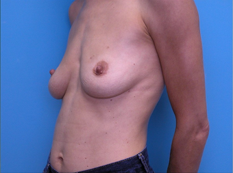 Breast Reconstruction before 310525