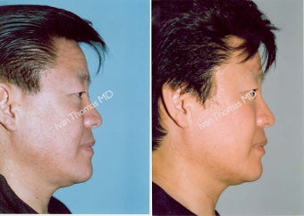Non-Surgical Face Lift- Exoderm  before 242990