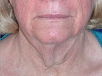 Necklift before 208458