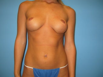 breast reduction after 284944