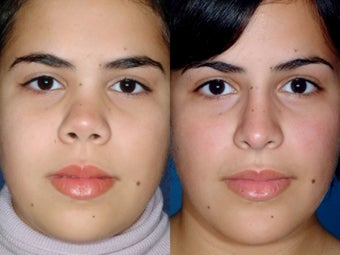 Revision rhinoplasty before 334261