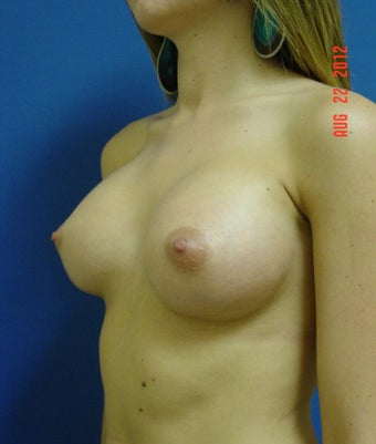 Woman in her mid twenties treated for uneven size and shape 621531