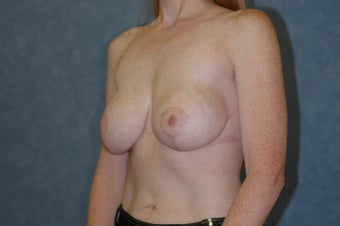 Breast augmentation with breast lift after 409393
