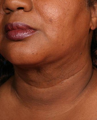 Neck liposuction with thermage after 137999