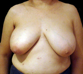 Breast Reconstruction - Left reduction, right silicone before 476711