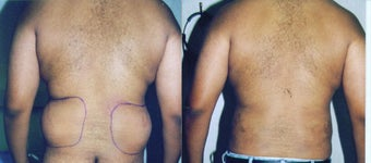 Liposuction Love Handles before 55481