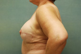 Breast Reconstruction after 221551