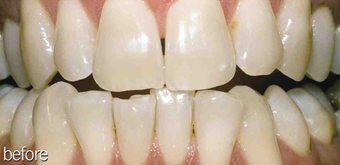 Teeth whitening genetic before 234636
