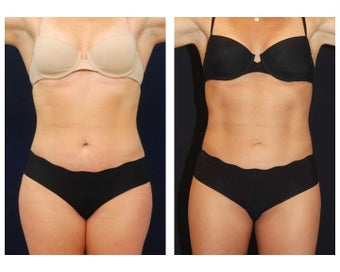 Liposuction before 286774