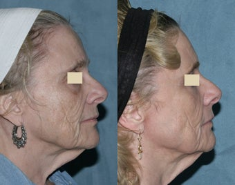 Fraxel repair with C02/Erbium lasers for upper lip wrinkles before 104334
