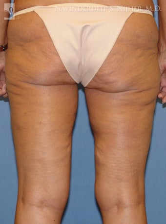 Thigh Lift after 502548
