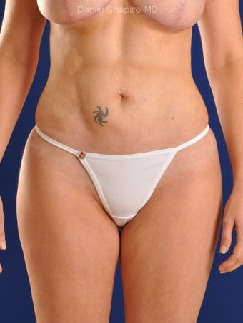 Vaser Hi Def Liposuction of abdomen, thighs, flanks and back with fat injections to buttocks after 422671