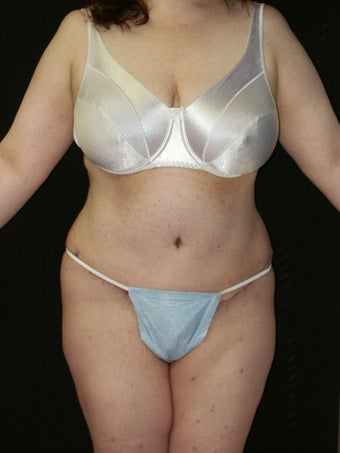Tummy Tuck after 368682