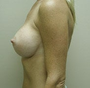 Breast Augmentation after 139569