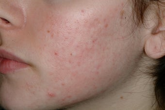 Acne and Isolaz after 95913