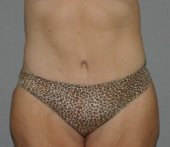 Circumferential abdominoplasty  after 564060