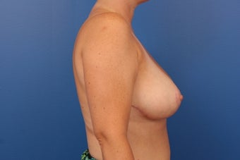 Breast Reduction 453956