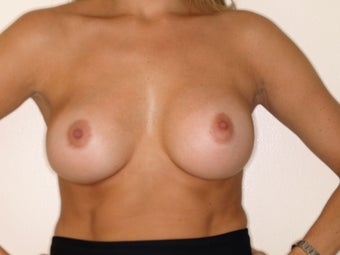 Bilateral Breast Augmentation after 233215