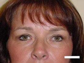 Blepharoplasty after 252432