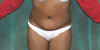 Women's Tummy Tuck after 558692