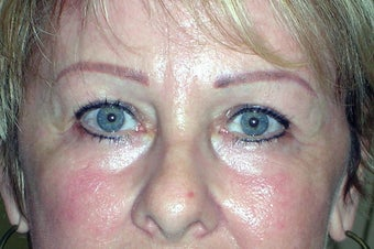 Endoscopic Brow Lift after 249006