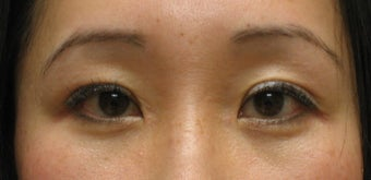 Upper and lower blepharoplasty by CO2 laser after 259539