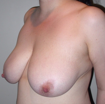 Vertical Breast Lift before 275503
