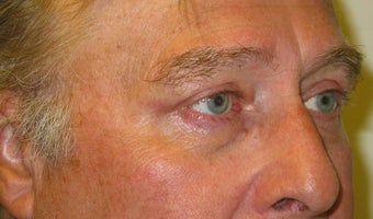 Upper Lid Blepharoplasty after 147717