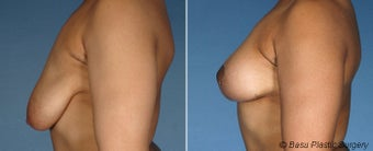 Breast Lift before 146916