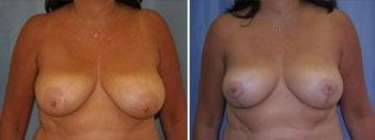 53 years old / breast reduction vertical technique before 343928