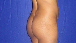 40 year old Brazilian Butt Lift - second view before 644135