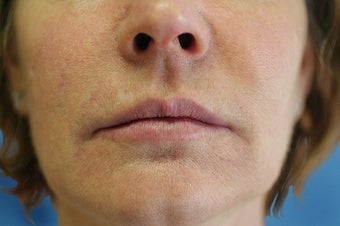 Silicone Microdroplets for Lip Augmentation after 109218