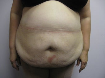 Abdominoplasty before 339805