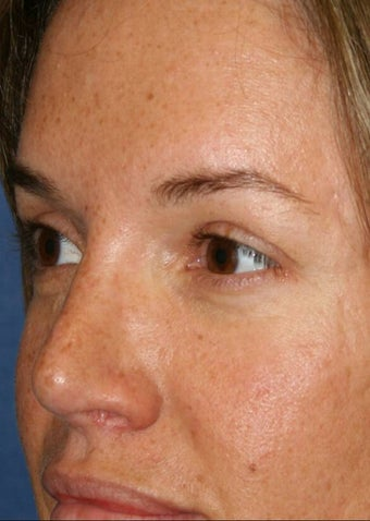 Rhinoplasty and Brow Lift after 142527