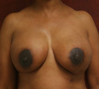 Bilateral Breast Reconstruction with Implants after 302908