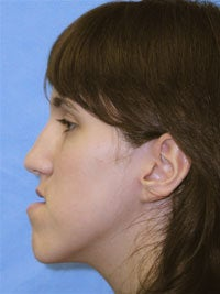 Orthognathic Jaw Surgery, Setback of Lower Jaw before 519682