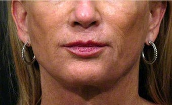 Sculptra, Juvederm, Obagi before 320649