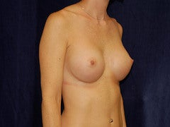 Breast Augmentation after 315698