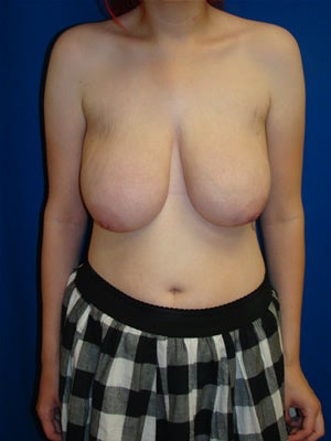 Breast reduction before 103148