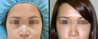 Lower Eyelid(Blepharoplasty) Surgery before 652331