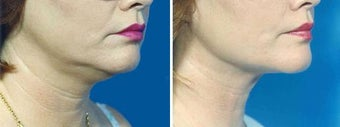Chin Liposuction before 640707
