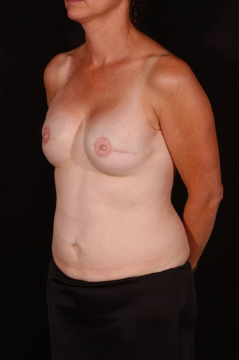 Breast Reconstruction after 164838