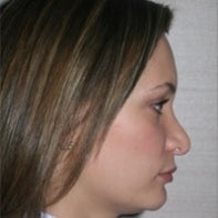 Revision Rhinoplasty before 443004