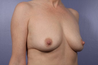 Breast Augmentation 466416