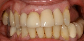 Dental implants, bone grafts, all porcelain crowns  before 503116