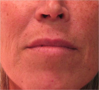 Juvederm to the upper lip before 77461